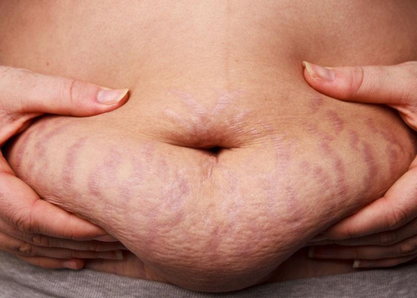 Schwangerschaftsstreifen Bauch